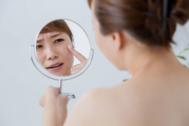 角質肥厚に悩む女性