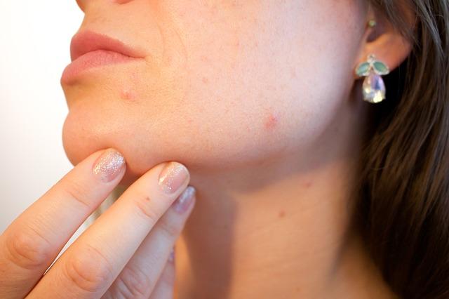 コラーゲン不足による肌荒れ